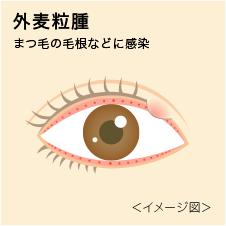 瞳のギモン『目のトラブルや病気』:麦粒腫(ばくりゅうしゅ