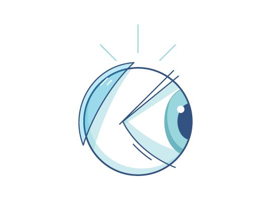 目の裏側にコンタクトが入ってしましまった眼球